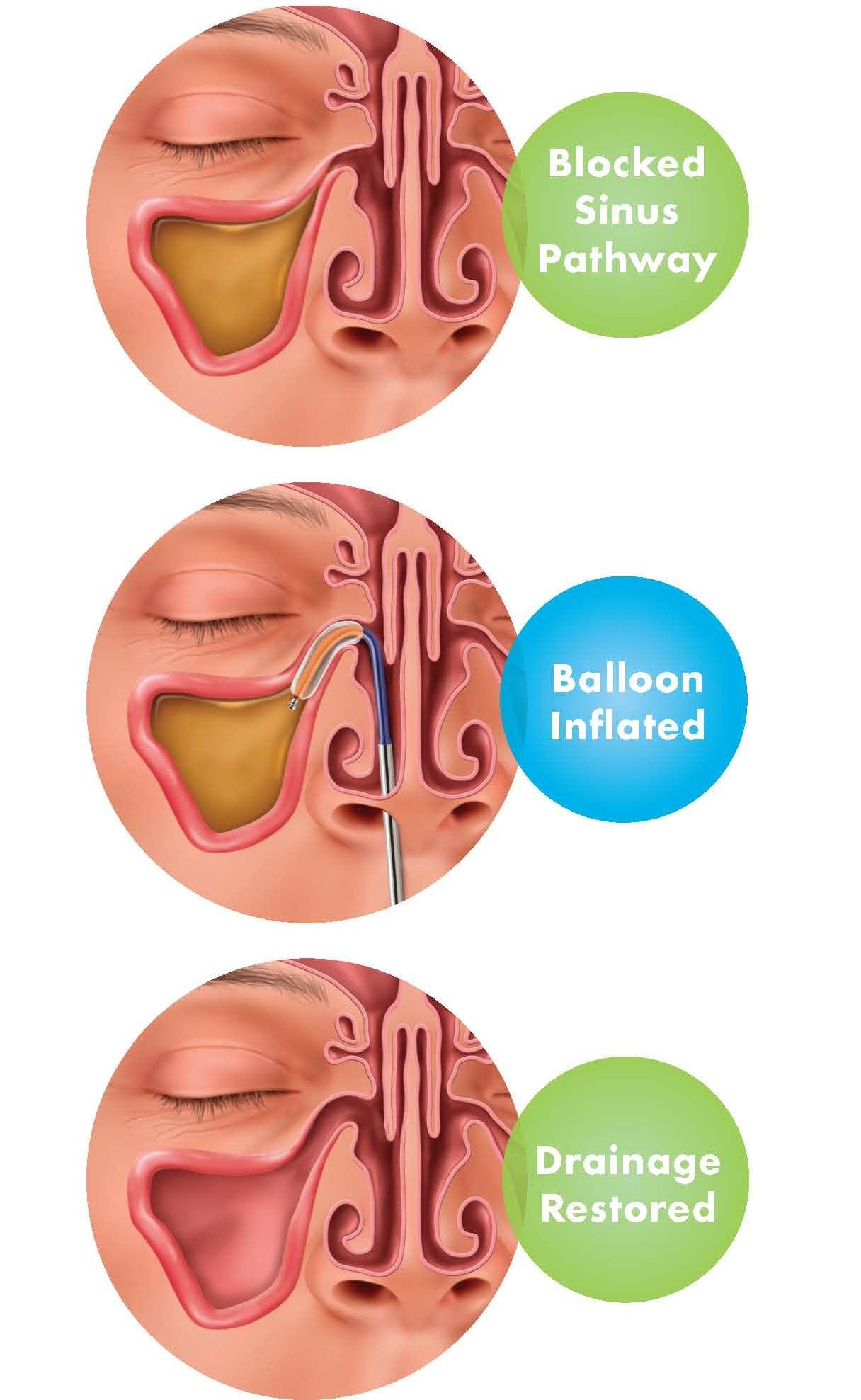 balloon sinuplasty and balloon sinus dilation st louis